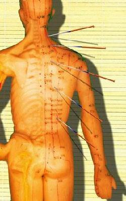 An acupuncture demonstraion dummy